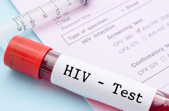 Диагностика ВИЧ