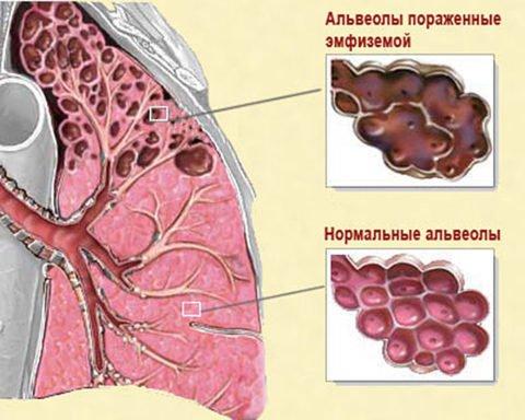 Вид легкого с нормальными и пораженными эмфиземой альвеолами