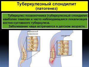 Симптомы и лечение туберкулезного спондилита
