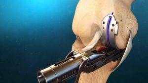 Протезирование тазобедренного сустава