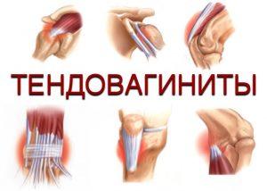 Причины и лечение тендовагинита