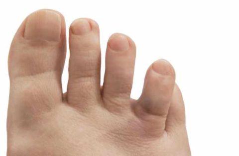 Визуальное симптомы неправильного срастания кости фаланги пальца на ноге