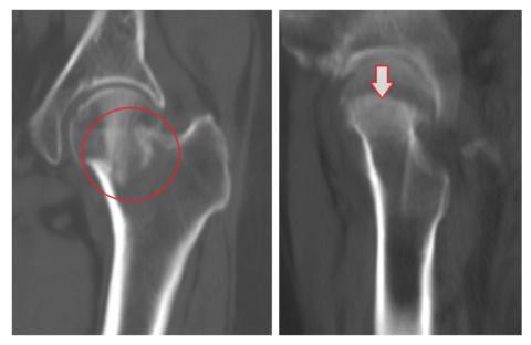 Вколоченные переломы бывают при переломе шейки бедра.