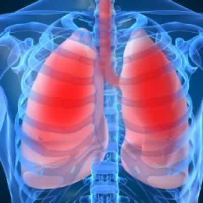 Воспаление легких может стать причиной развития серьезных осложнений.