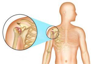 Операция на плечевых суставах