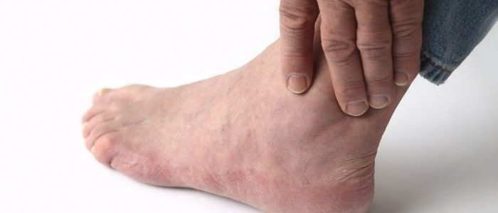 Болит голеностоп