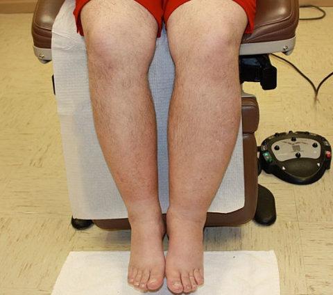 Вследствие лимфостаза возможны застойные явления и формирования язвенных процессов на ногах.