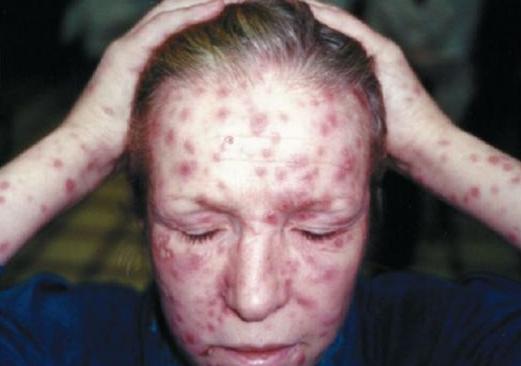 Бытовой сифилис вторичный сифилис