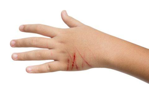 Вялозаживающие раны и эрозиии – также могут стать следствием укуса четвероногого