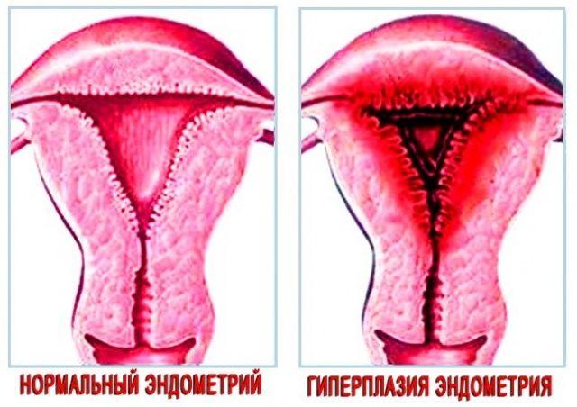 Выделения из влагалища при эндометрите
