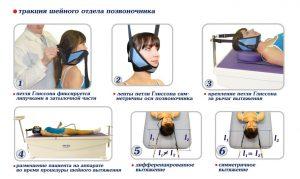 Вытяжение при остеохондрозе шеи