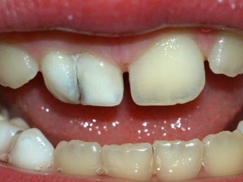 Вывих или перелом может быть в любом участке зуба