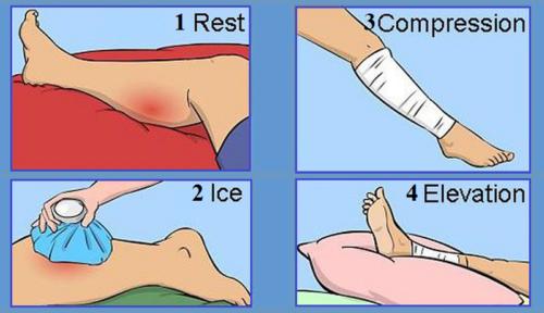 Расшифровка аббревиатуры методики оказания первой помощи R.I.C.E. — покой, лед, сжатие, возвышение