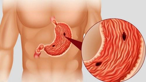 Язва желудка - причина острой боли в пояснице
