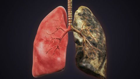 Заболевание может не проявлять себя в течении продолжительного времени.