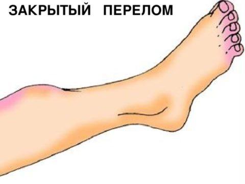 Закрытый перелом – это повреждение костных тканей без нарушения целостности кожных покровов.