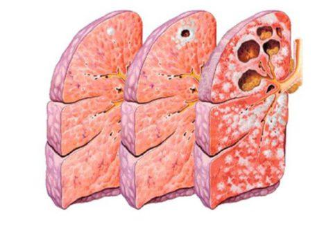 Закрытый туберкулез может перейти в открытый