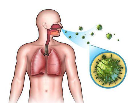 Заражение происходит через респираторный тракт (на фото), но пневмония развивается только в определенных случаях