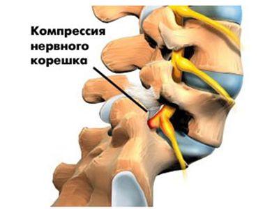 Блокада при компрессии нервных корешков