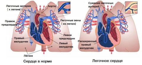 Здоровое и легочное сердце