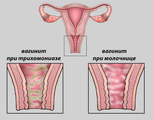 Желтые выделения при вагините