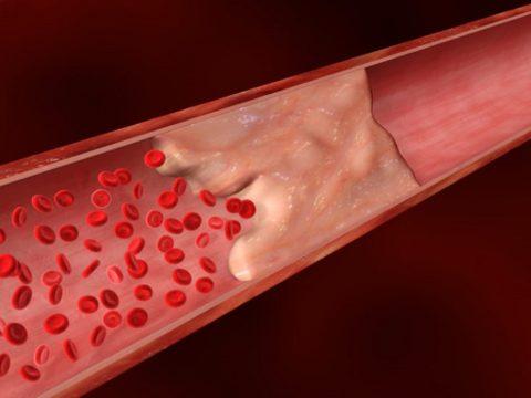 Жировая эмболия может привести к смерти пациента в первые трое суток после травмы.